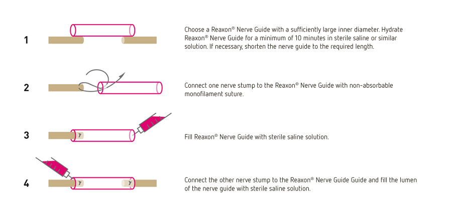 nerve_guide_use_v1_WEB
